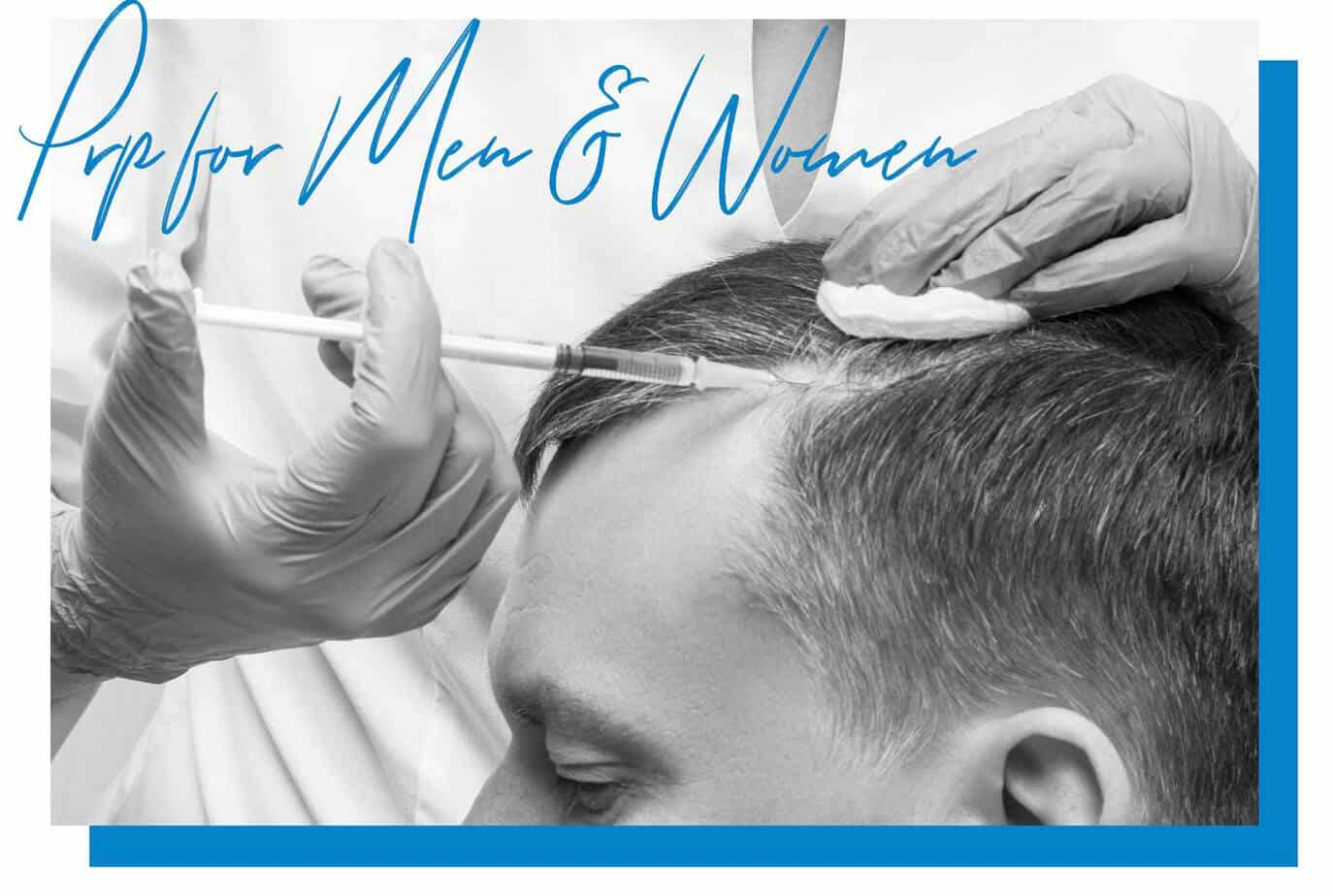 prp hair loss treatment miami