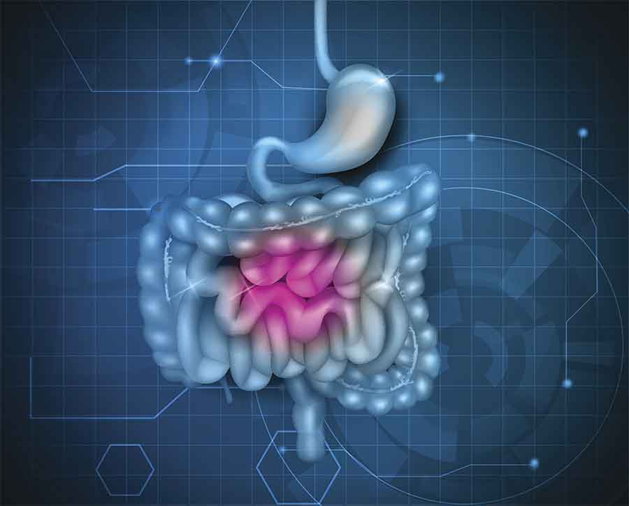 how to heal your gut | Functional Medicine Miami