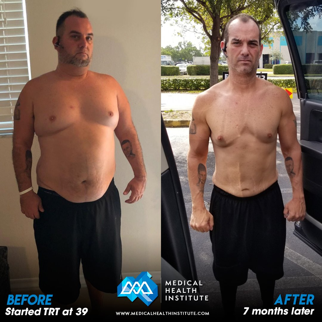 Craig G Before And After