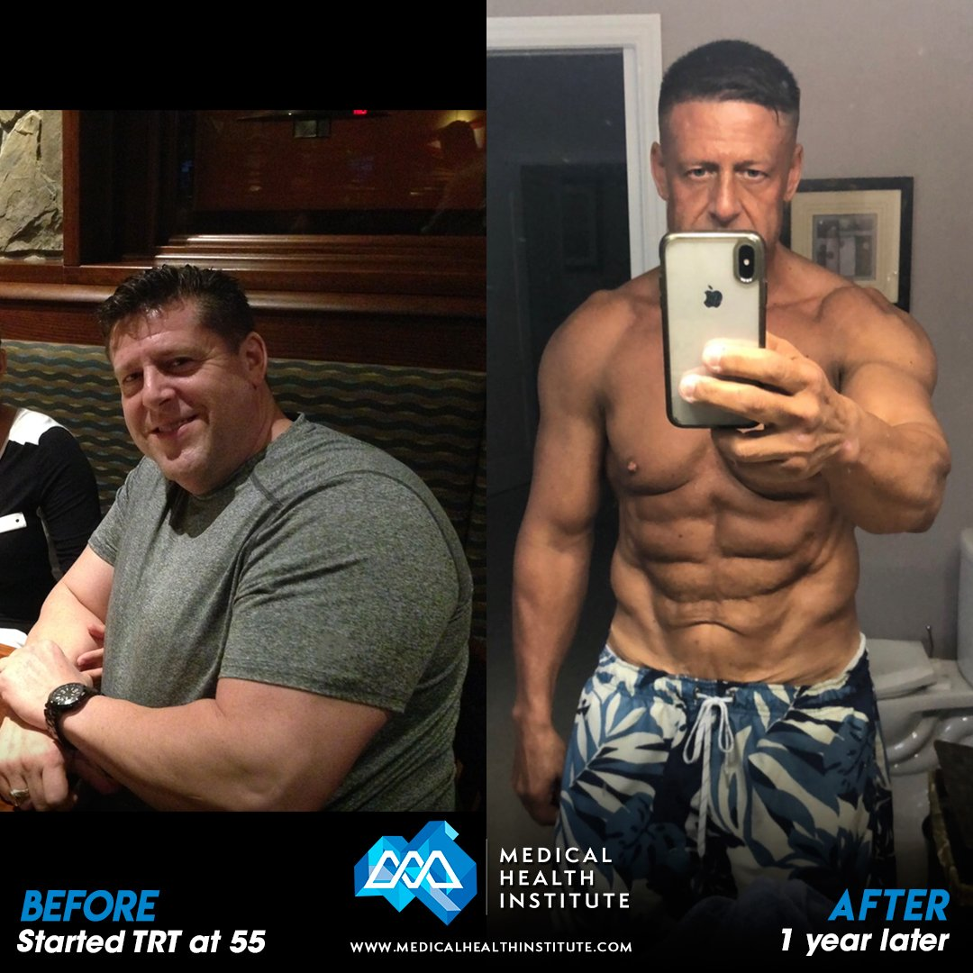 Thomas L Before After