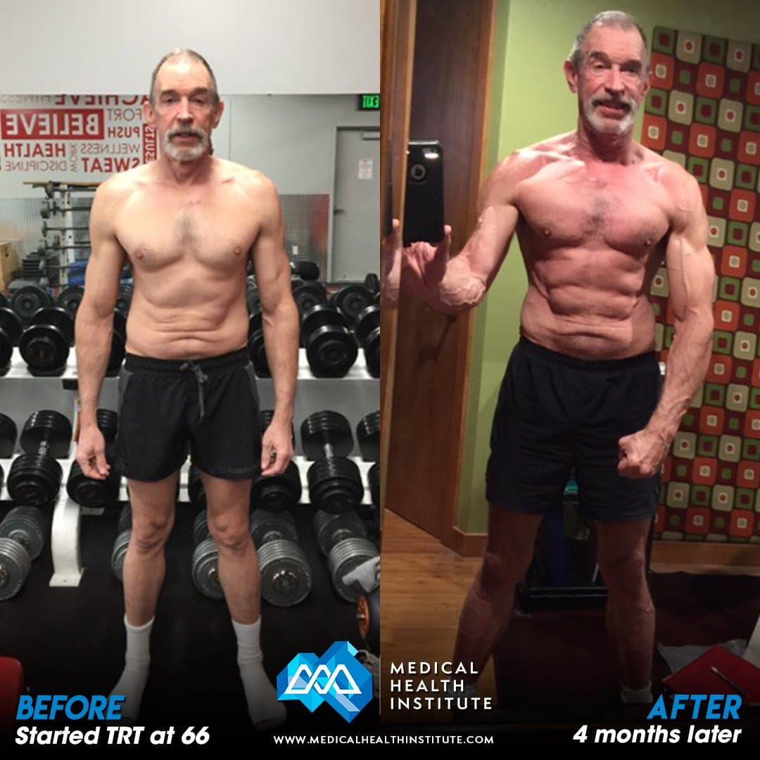 John M Before After