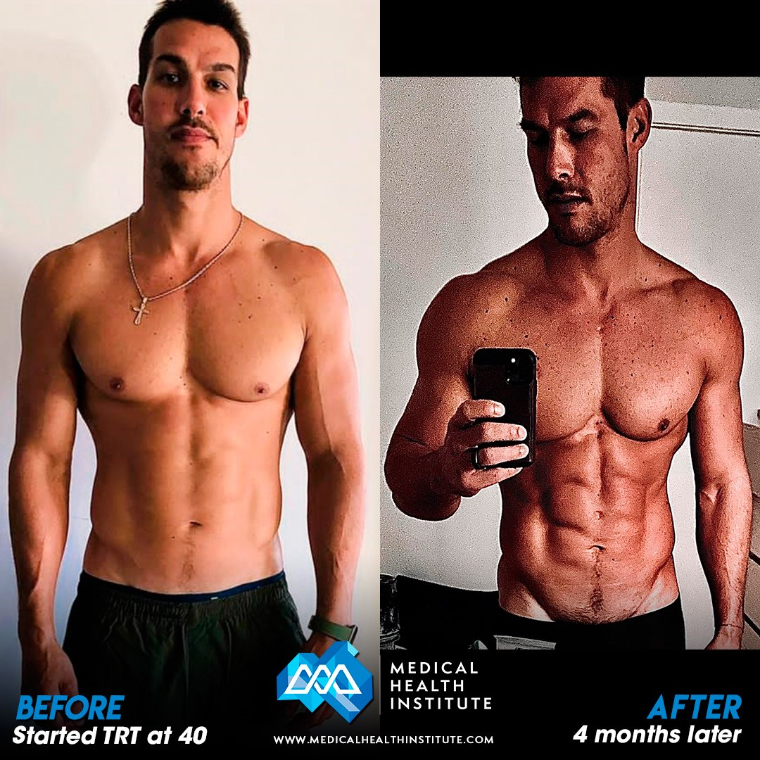 Carlos B Before And After